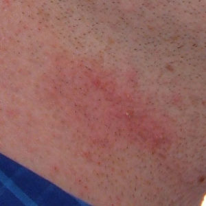 How to Prevent Irritations and Burns