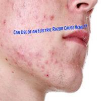 Electric Razor Cause Acne