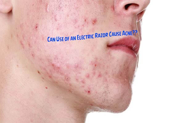 Electric Razor Cause Acne
